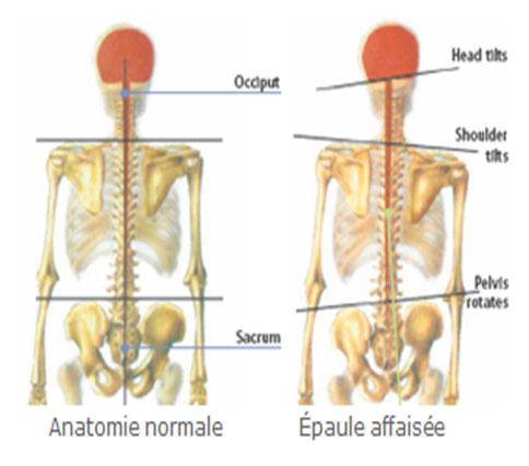 Amoena- Ajustement prothèses mammaires